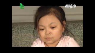 Chuyện lạ:  Cô gái 25 tuổi mang hình hài của đứa trẻ lên 5