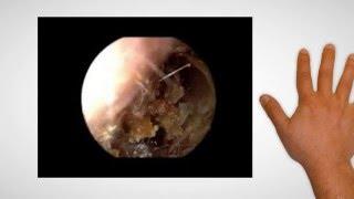 Ear Wax Removal In Leeds