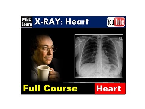 X RAY (Full Course)-HEART