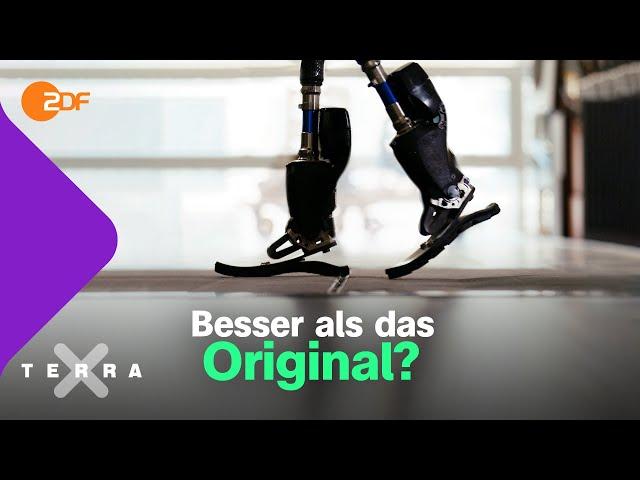 Wie bionische Prothesen funktionieren   Terra X plus
