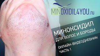 Миноксидил для волос и бороды. Онлайн-видеодневник о применении миноксидила для волос. Minoxidil4you