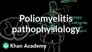 Poliomyelitis pathophysiology   Infectious diseases   NCLEX-RN   Khan Academy