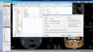 How to Copy a CT Scan to USB in Xelis 3D Imaging