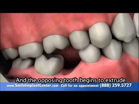 Diş Hekimi Namık Kemal  AYDIN DİŞ EKSİKLİĞİ SONRASI OLANLAR