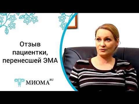 Личный опыт эмболизации маточных артерий в лечении миомы, рассказ Елены