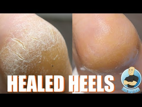 HOW TO TREAT DRY, CRACKED HEELS