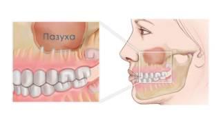 Гайморит. К кому обращаться: к лору или к стоматологу?