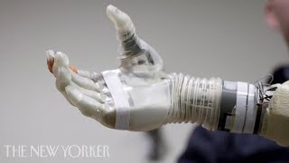 A Robotic Arm Controlled by the Mind  | The New Yorker