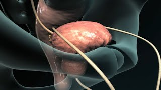 Transurethral Resection of the Prostate (TURP)