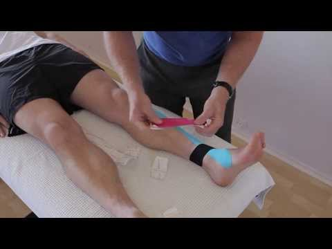 How to treat Anterior Shin Splints with Kinesiology taping