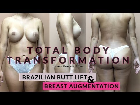 Brazilian Butt Lift - Breast Augmentation - Toronto Cosmetic