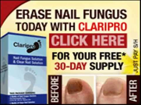 New Claripro review report about Claripro Nail Fungus treatment