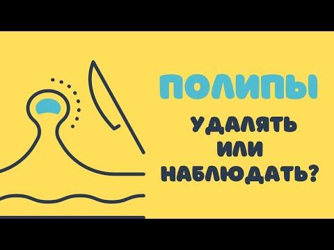 Полипы - удалять или наблюдать - Др. Елена Березовская