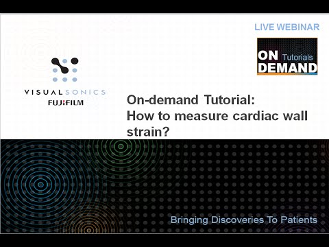 April 2015 Webinar - On Demand Tutorial: How to Measure Cardiac Wall Strain