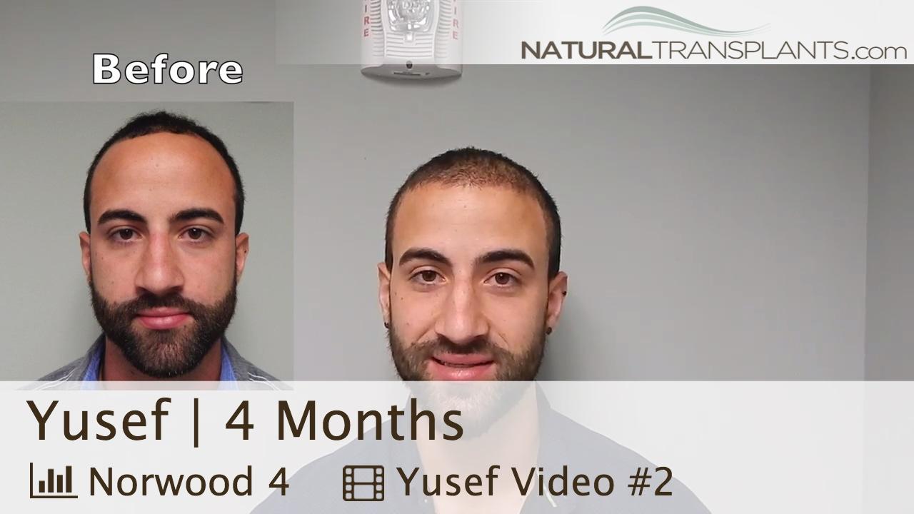 Предлагаем купить средства для лечения волос и кожи головы в. System 4 шампунь №1 для нормальной кожи головы и склонной к жирности 970 руб.