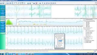 Result3. Разбор морфологии QRS, страница «Оценка морфологии QRS-комплексов».