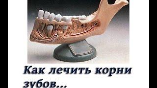 Как лечить корни зубов  Заболевания корневых каналов  Стоматология