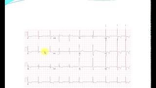 Invata bazele electrocardiogramei EKG