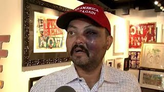 Man Says He Caught A Beatdown Because He Wore A 'Make America Great Again' Hat