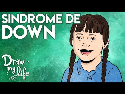 DOWN SYNDROME I What is it? I Draw My Life from YouTube · Duration:  3 minutes 11 seconds