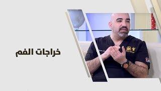 د. خالد عبيدات - خراجات الفم