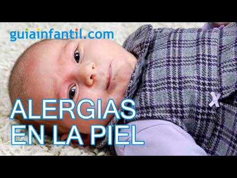 sarpullido en la cara bebe 1 mes