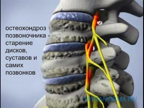 Хондроз спины: лечение, симптомы и причины