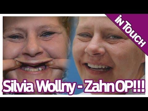 Die Wollnys: Vorher/Nachher - Sylvia Wollny zeigt ihr Zähne!
