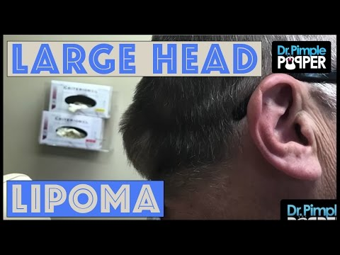 Oh My Lipoma with Dr Pimple Popper