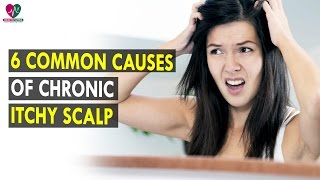 6 common causes of chronic itchy scalp || Health Sutra - Best Health Tips