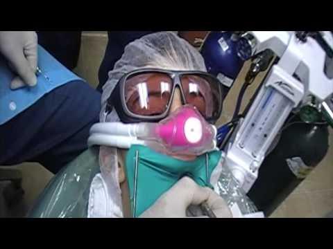 Safe Amalgam Removal On A Child