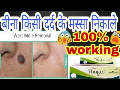 Thuja cream Review | Remove warts and mole without any pain