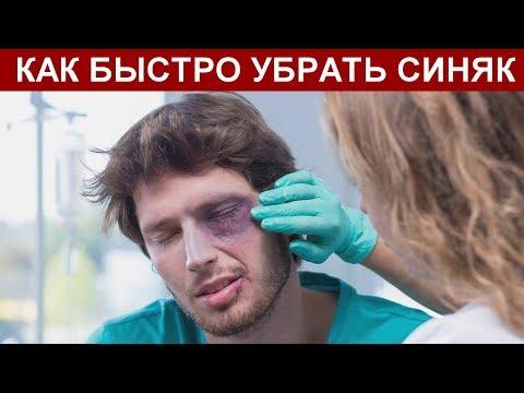 Вопрос: Как скрыть синяк под глазом?