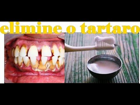 Como Eliminar O Tartaro Na Hora E Clarear Os Dentes Com Essa