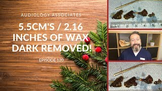 5.5CM/2.16INCHES OF DARK EAR WAX REMOVED - EP 120
