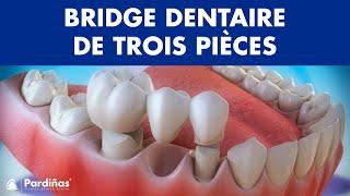 Bridge dentaire de trois pièces ©