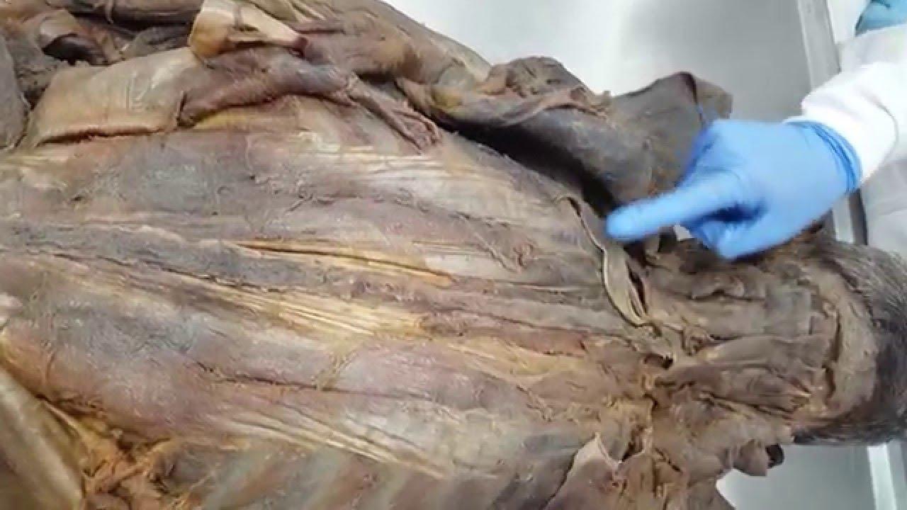 Anatomía músculos del dorso. - YouTube