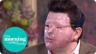 Andreas Christopheros Describes Horrific Acid Attack | This Morning thumbnail