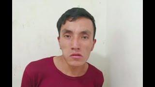 Por robarle bicicleta, ladrón hirió gravemente a un joven en la cara