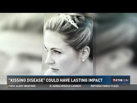 EBV 'Kissing disease' could cause lifelong health problems - KTVB 12-02-2017