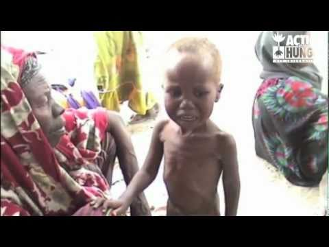 EAST AFRICA CRISIS : Please help Action Against Hunger respond
