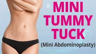 Mini Tummy Tuck Explained (Mini Abdominoplasty) - Edelstein Cosmetic - Toronto Thumbnail