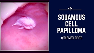 Squamous cell papilloma