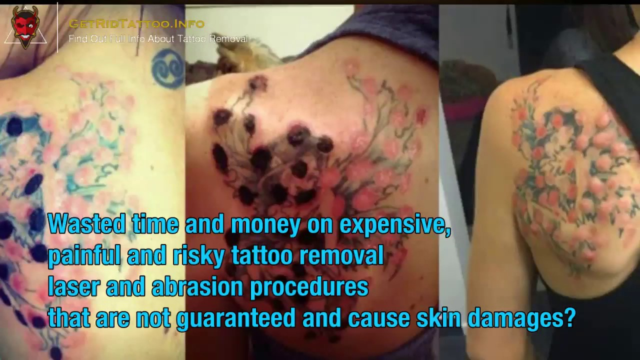 Fastest Way To Remove Tattoo – Everything you must to know about ...