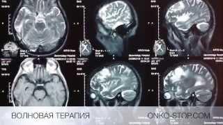 Успешное лечение 4 стадии рака легких, метастазы в голове.(Успешное лечение 4 стадии рака легких (метастазы в голове) Пациент Ю. Возраст 57 лет. Диагноз рак легких...., 2015-06-02T20:23:31.000Z)