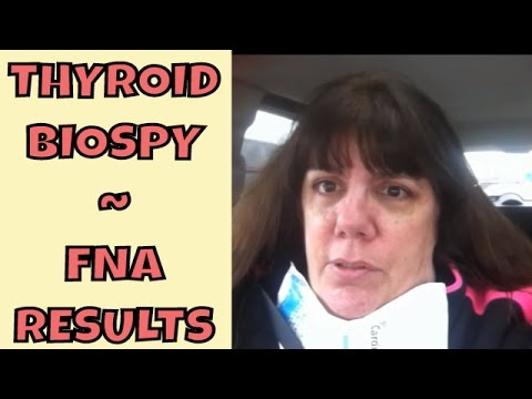 Thyroid Biopsy ~ FNA ~ Results