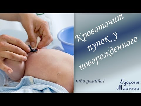 Что делать, если кровоточит пупок у новорожденного