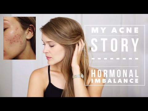 My Cystic Acne Story - Hormonal Imbalance