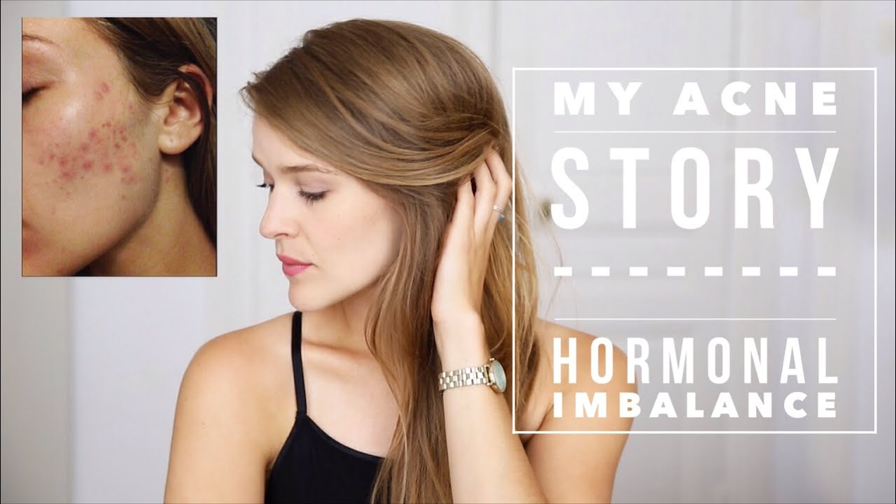 Hormonal Acne Diagram 12v Relay My Cystic Story Imbalance Youtube