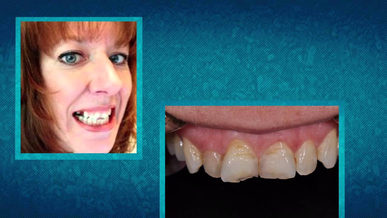 Smile Story Contest | American Academy of Cosmetic Dentistry